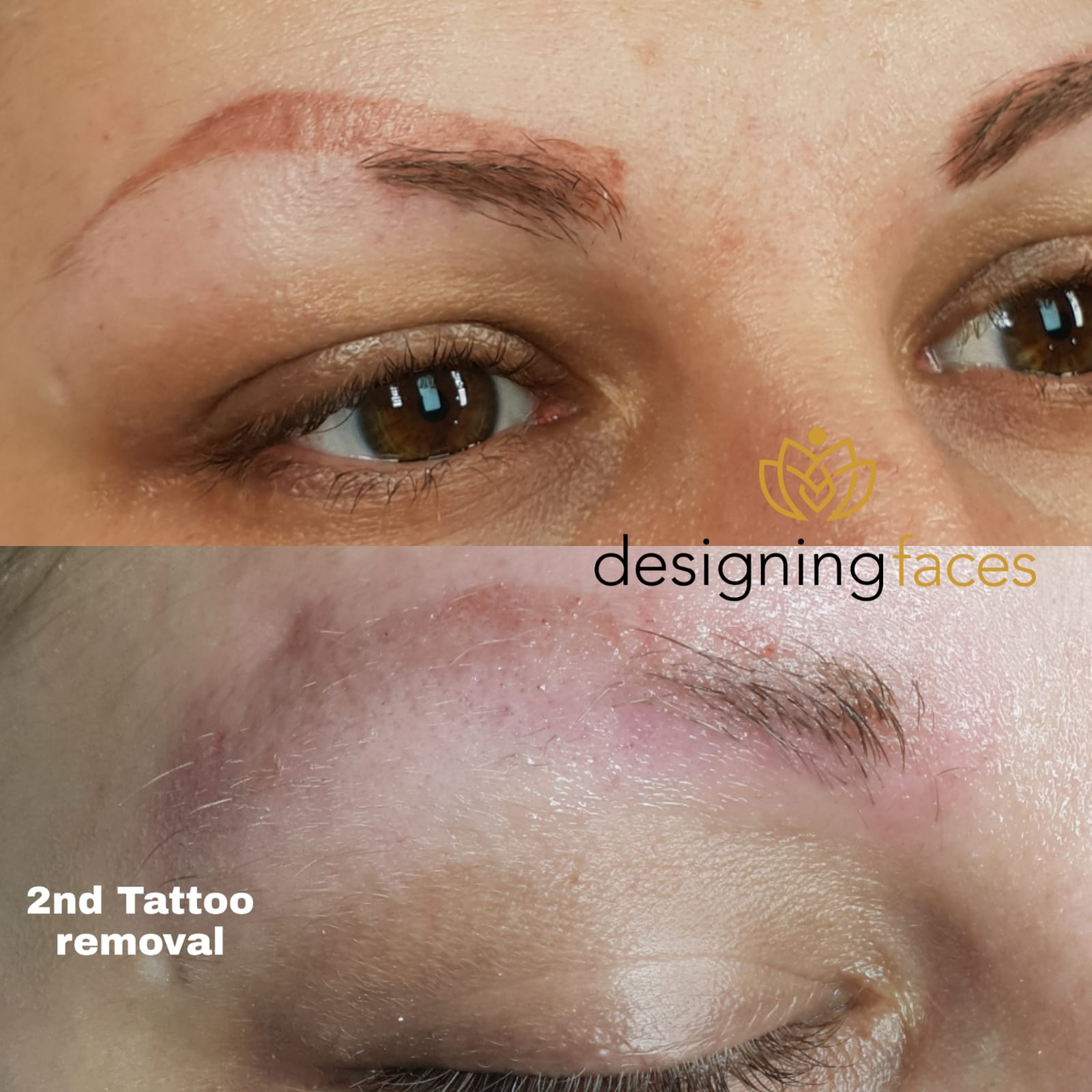 Microblading Removal Treatments in Birmingham | PhiRemoval