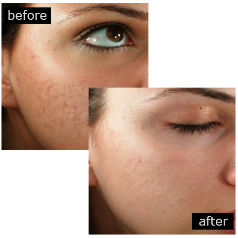 Acne Scar Removal Treatments In Birmingham By Designing Faces